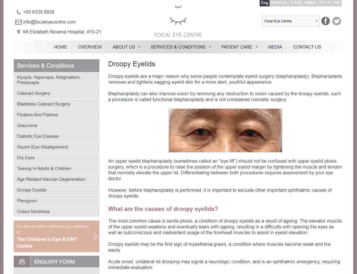 focal eye center Top Ptosis Surgery Clinics in Singapore